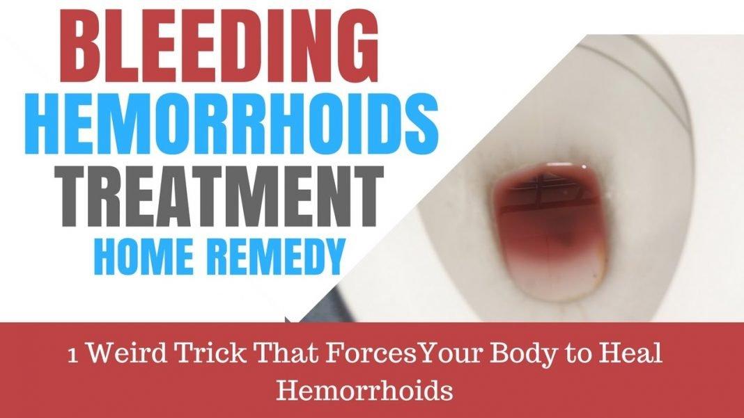 bleeding hemorrhoids treatment home remedy 48 hour cure