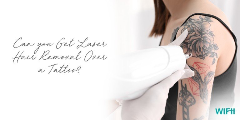 can you get laser hair removal over a tattoo