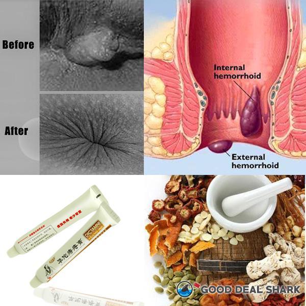 Chinese Herbal Hemorrhoid