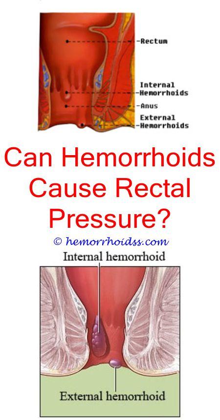 Do Hemorrhoids Leak?