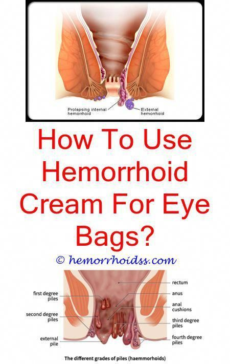 Hemorrhoids can be incredibly unpleasant and also ...