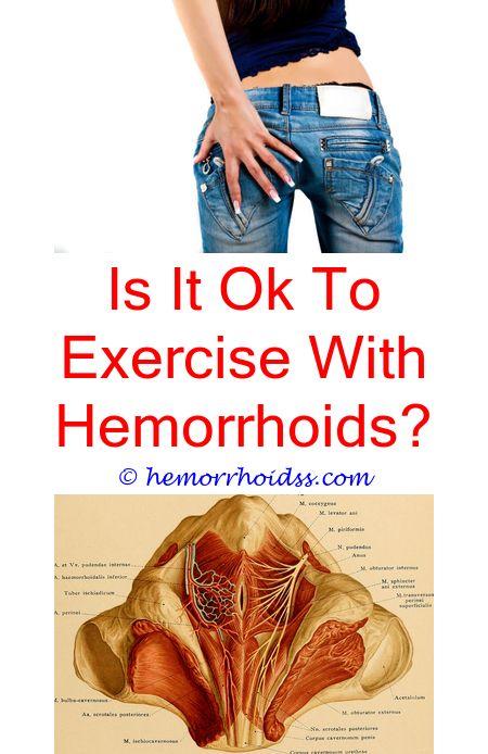 hemorrhoidsremedies how to get rid of hemorrhoids ...