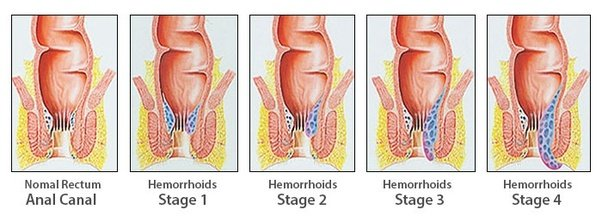 How to cure hemorrhoids without a doctor