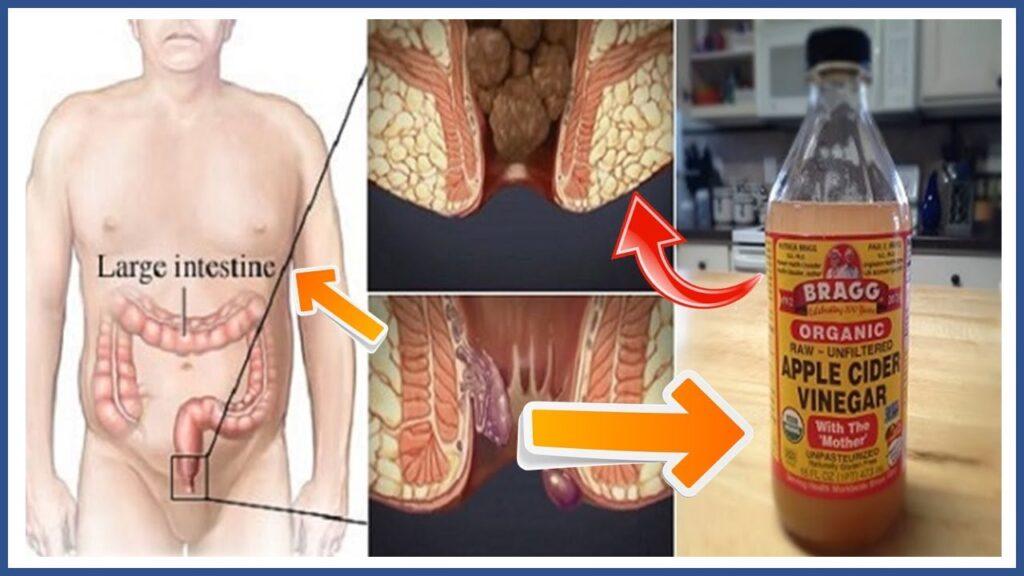 How To Stop Internal Hemorrhoids Bleeding Naturally At ...