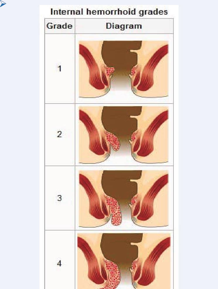 Internal Hemorrhoid Grading [Image on the Internet] [7 ...