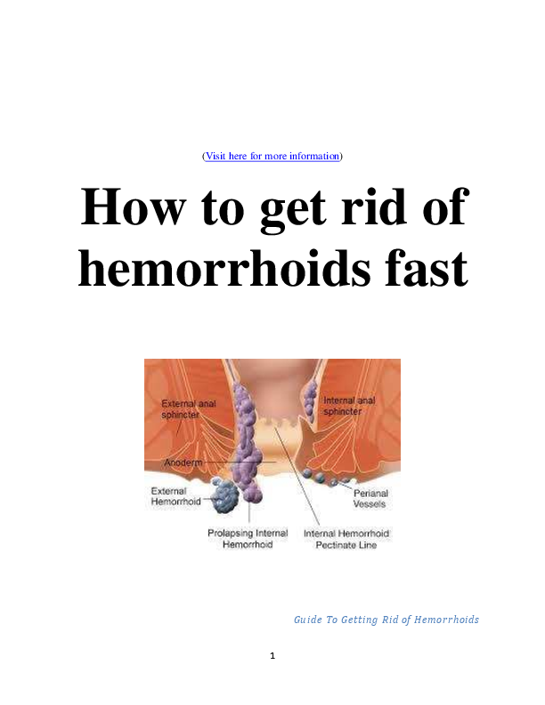 (PDF) How to Get Rid of Hemorrhoids Fast