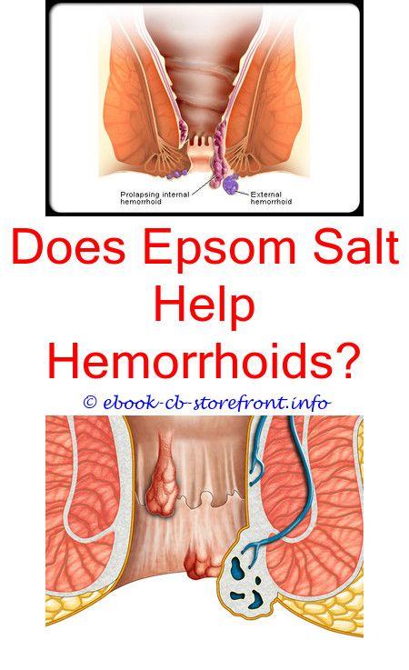 Pin on Hemorrhoid Treatment