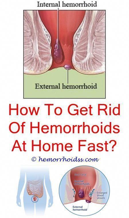 Pin on Hemorrhoids Causes