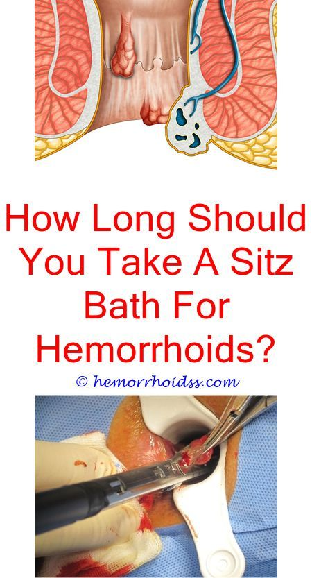 Pin on home remedies for hemorrhoids
