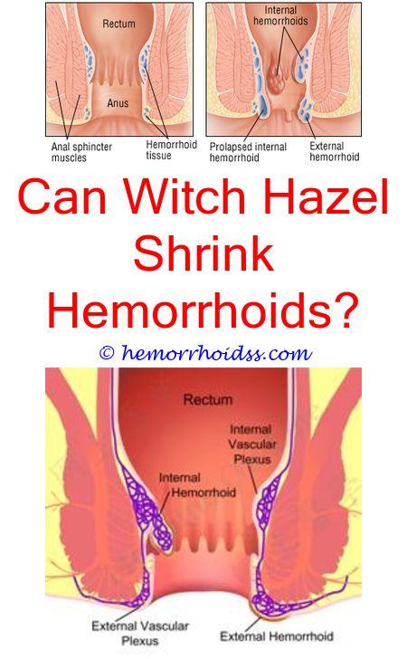 unique tricks how long can you have internal hemorrhoids